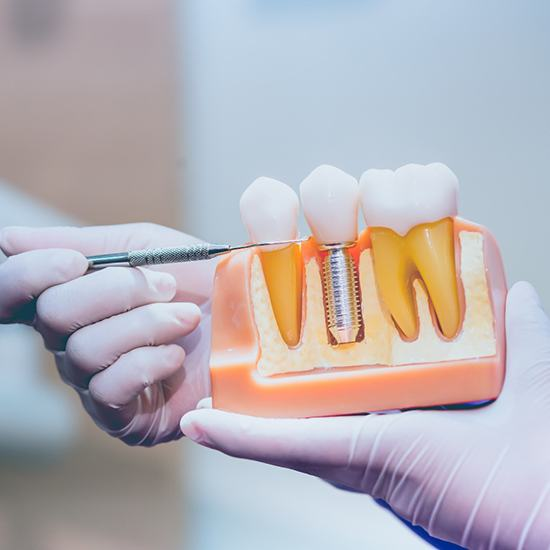 An up-close view of a dentist showing a cross-section of a mouth mold that includes a dental implant during a consultation