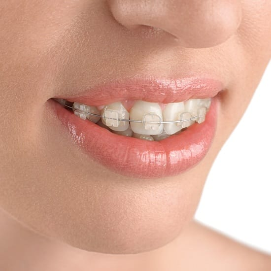 Woman with six months smiles clear braces